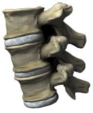 Nyeri tulang punggung